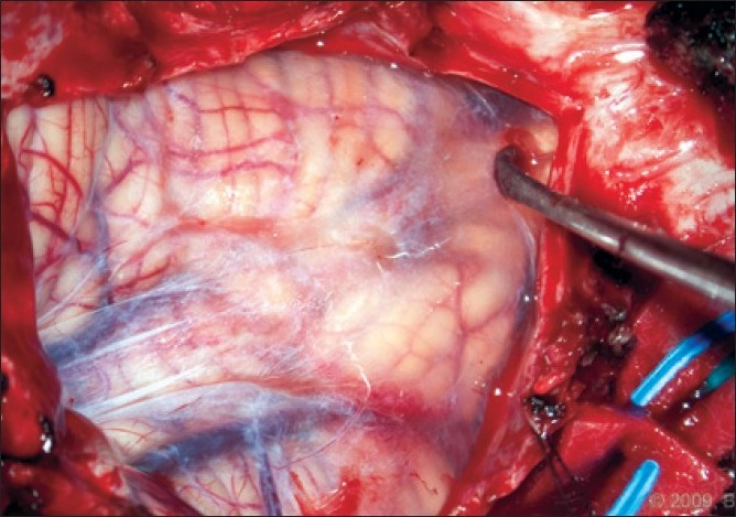 Figure 5 :Intraoperative photograph of tonsils visualized through an intact arachnoid membrane. No adhesions are present and the caudal aspect of the tonsils can be seen. [Used with permission from Barrown Neurological Institute]