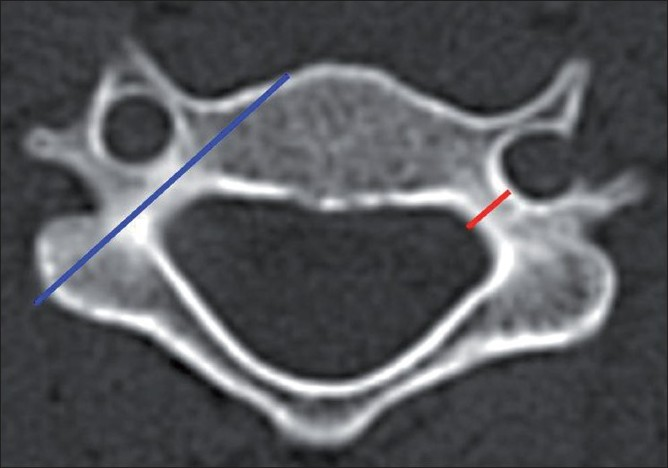 Figure 1 :Technique of measuring the pedicle width and the axis length in the axial CT image before planning screw insertion. The pedicle width (red line) is measured at its narrowest part between the two cortices. The pedicle axis length (blue line) is measured along its axis from the lateral mass till the anterior vertebral body
