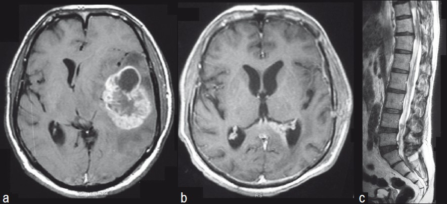 Figure 1: (a) Post-contrast axial magnetic resonance imaging (MRI) scan shows a heterogenously enhancing left temporal tumor Cerebral edema is noted around the lesion. There is early subfalcine herniation to the right and the ipsilateral ventricle is compressed. (b) Post– excision and adjuvant therapy post-contrast axial MRI scan demonstrates a complete excision of the left temporal tumor. Ependymal enhancement is noted within the left atrium and occipital horn. (c) Multiple nodules are noted in the lower dorsal and lumbar spine suggestive of spinal metastases