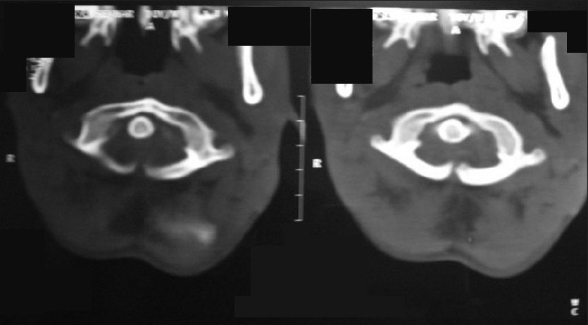 Figure 1: CT scan axial section showing the posterior arch defect