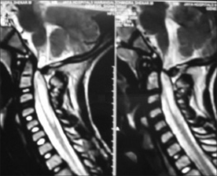 Figure 3: MRI sagittal section showing severe constriction