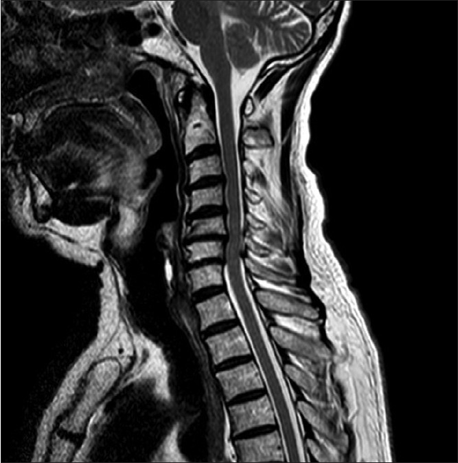 Pics For > Cervical Myelopathy Mri