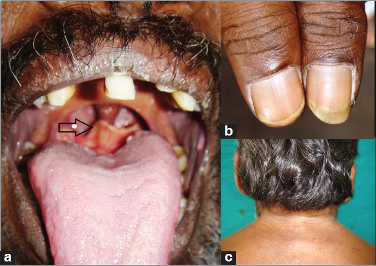 Figure 1: (a) Prominent high-rising epiglottis (b) Hypoplasia of left thumb. (c) Webbed neck and low hair line
