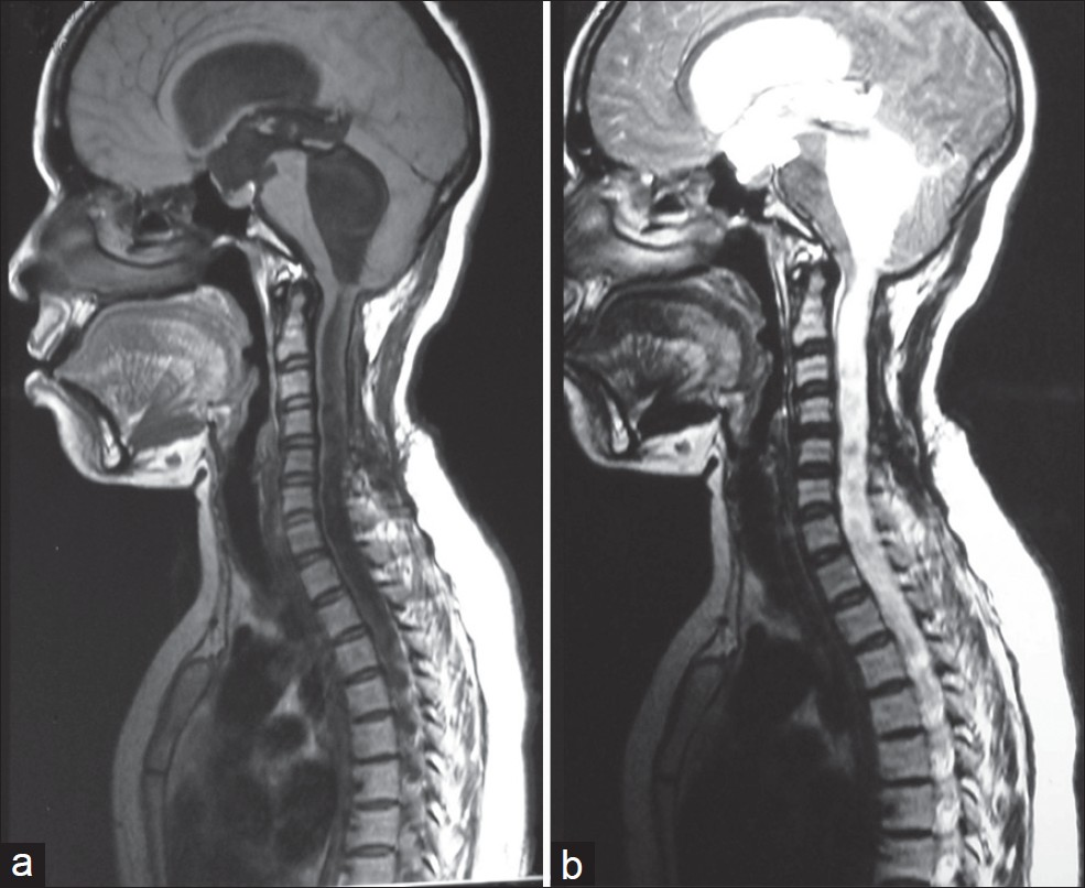 Figure 4: (a) Sagittal T1 weighted MRI at the time of shunt dysfunction showing panventriculomegaly with holocord syrinx, (b) Sagittal T2 weighted MRI at the time of shunt dysfunction showing panventriculomegaly with holocord syrinx