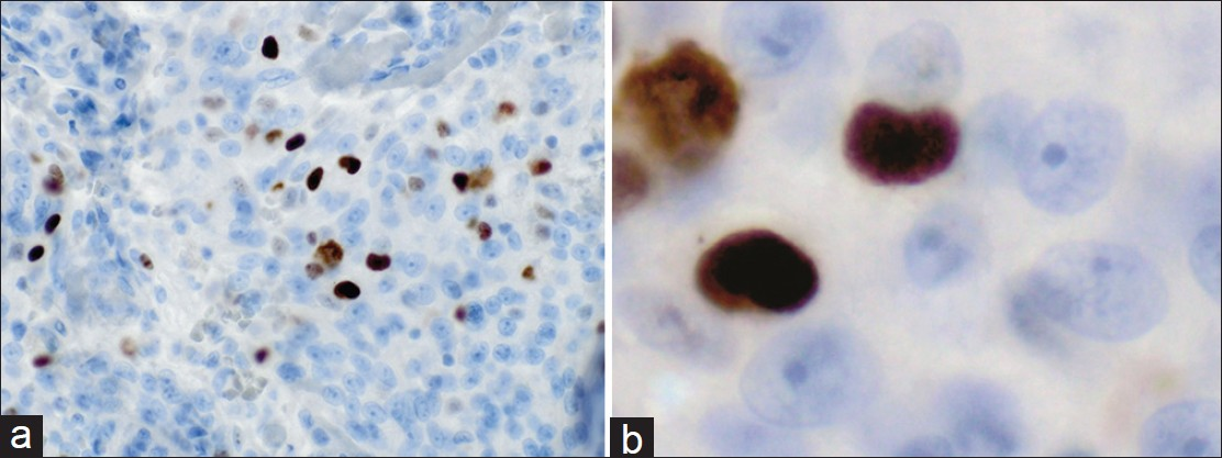 Figure 5: Immunohistochemical staining for Ki-67 antigen, (a) ×60, MIB-1 proliferation index was quantitated at  12.9%, (b) Shows detail of the prominent nucleoli in the MIB-1 immunostained section