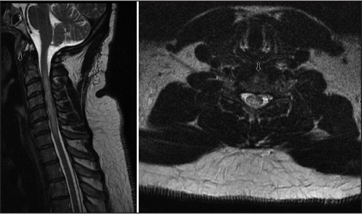 Figure 1: Sagittal (left) and axial (right) T2-weighted magnetic resonance imaging (MRI) demonstrating intramedullary hyperintensity without any enlargement of the spinal cord extending from the C3 to C6 level with superimposed cervical stenosis secondary to degenerative changes