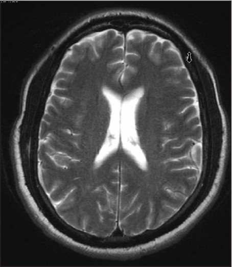 Figure 5: T2-weighted axial MRI of the brain showing no obvious abnormality