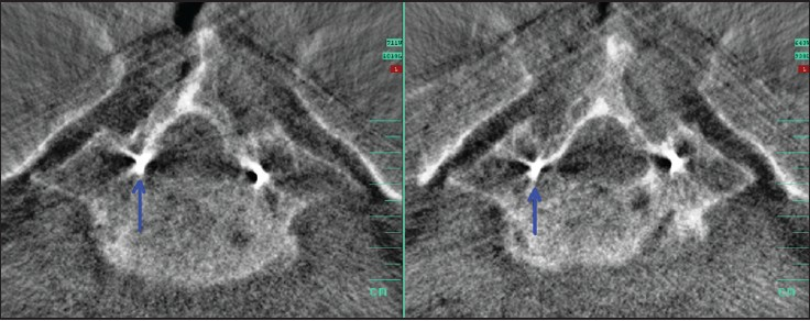Figure 2: Left - axial view of intraoperative three-dimensional-scan showing a medially misaligned Kirschner wire (K-wire) at the rightsided S1 (arrow); (right) after appropriate K-wire correction (arrow)