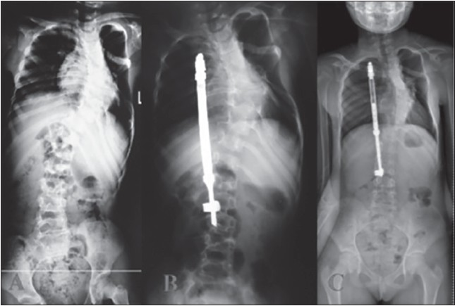Figure 2: Posteroanterior X-ray images of a patient from Group 2 obtained in the preoperative, early postoperative periods, and during the last follow-up