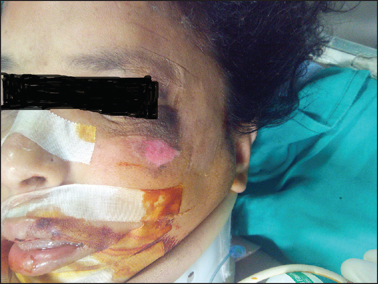 Figure 1: Skin excoriation over the maxilla, hyperpigmentation in the periorbital region, and headrest impression over the forehead (left sided) following supine positioning