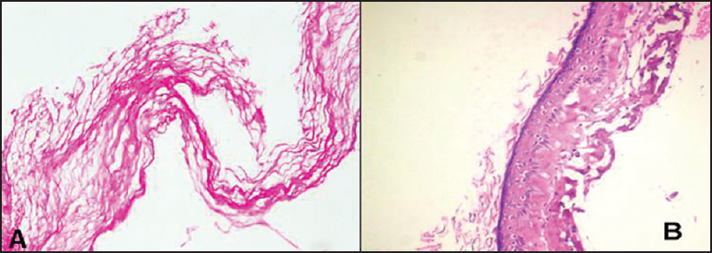 Figure 4: Paraffin section of the lesion demonstrating (a) Anucleated squames with (b) Stratified squamous lining epithelium. [Hematoxylin & Eosin (A, B) 100×]