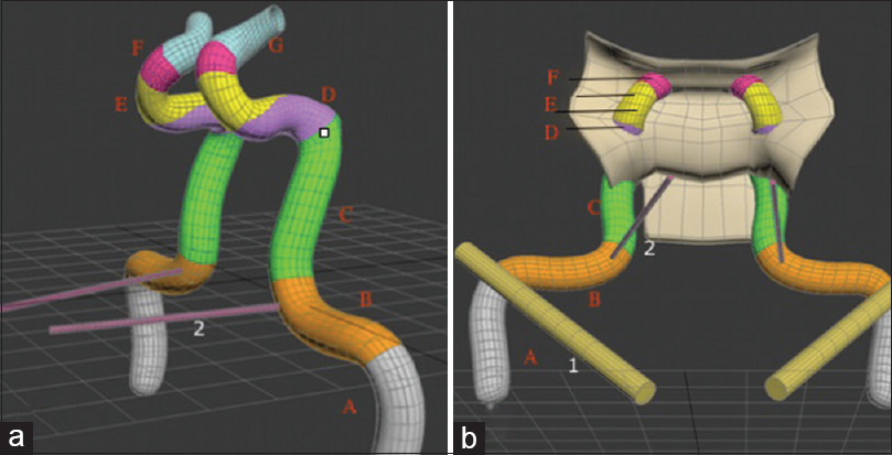 Figure 13: Three-dimensional reconstruction of the internal carotid artery based on data points collected. The vidian canal and its three-dimensional relation to the junction of the petrous to the Gasserian-Clival internal carotid artery segments (a). The Vidian canal and the eustachian tube and their relationship to the cochlear, petrous, and Gasserian-Clival segments (b). (a) Anterior view of the both ICA. (b) Coronal view of the both ICA. (1) ET (2) Vidan Canal, (A) Cohlear, (B) petrous, (C) Gasserian - Clival (D) Sellar (E) Sphenoid (F) Ring (G) Cisternal segments of the ICA