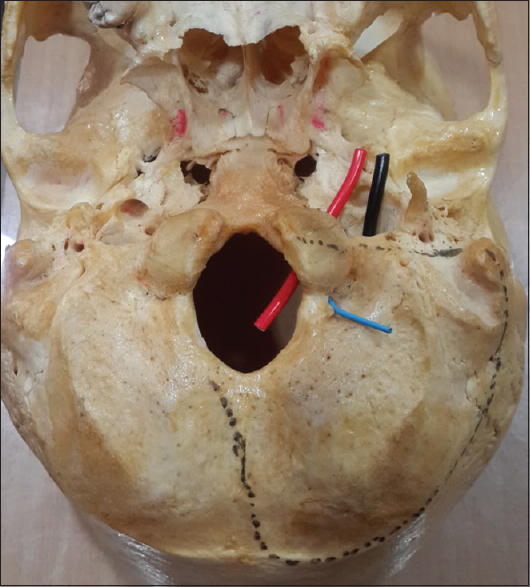 the anatomical perspective of human occipital condyle in relation to
