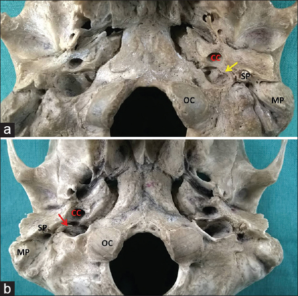 Figure 2: Inferior view of skull base showing: (a) absent dome of left jugular fossa*; (b) absent dome of right jugular fossa. CC: Carotid canal, MP: Mastoid process, SP: Styloid process, OC: Occipital condyle. (*significant parameter)