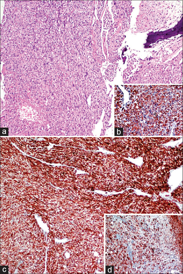 Figure 2: Metastatic renal cell carcinoma adjacent to lamellar bone. (a) The solid tumor is composed of cells with hyperchromatic nuclei and clear to eosinophilic cytoplasm (H and E, ×100). (b, inset) Strong vimentin positivity in tumor cells (anti-vimentin, ×200). (c) Diffuse and strong AE1/AE3 positivity in tumor cells (anti-pan CK, ×200). (d, inset) CD10 positivity in tumor cells (anti CD10, ×200)