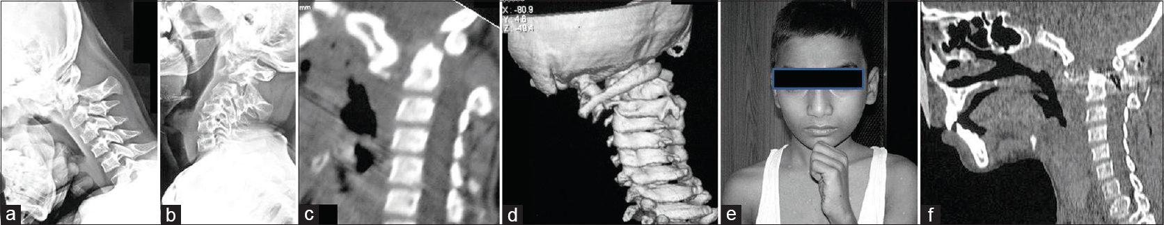 Figure 5: Images of a 12-year-old boy. (a) Lateral radiograph with the head in flexion showing translatory dislocation. The C1 vertebra is dislocated anteriorly. (b) Lateral radiograph with the head in extension showing no reduction of the dislocation. (c) Sagittal computed tomography scan showing the atlantoaxial dislocation. (d) Three-dimensional computed tomography reconstruction revealing the translatory dislocation of C1 over C2. (e) Photograph of the boy holding his head with thumb over the chin to look ahead. (f) Postoperative computed tomography scan showing reduction of the dislocation