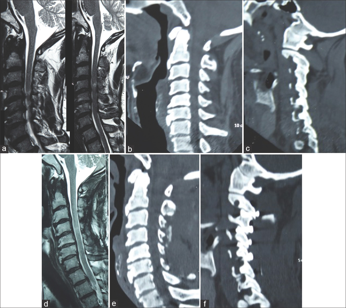 Figure 2: Images of a 48-year-old male patient [Case 9]. (a) T2 weighted sagittal magnetic resonance imaging showing cervical spondylotic myelopathy with disc protrusions at C3-4, C4-5 and C5-6 levels. (b) Computed tomography scan of the cervical spine. (c) Computed tomography scan of the cervical spine with cut through the facets showing the Type 3 atlantoaxial facetal instability. (d) Postoperative magnetic resonance imaging showing the reduction of cord compression. (e) Postoperative computed tomography scan. (f) Postoperative computed tomography scan with the cuts through the facets showing C2-3, C3-4, C4-5 and C5-6 transarticular screw fixation
